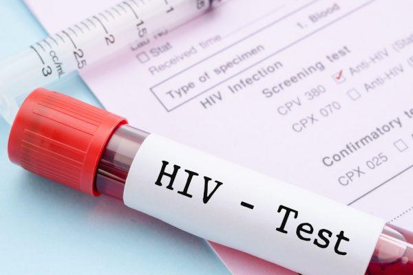 Тестирање на ХИВ